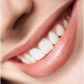 Petua Cara Memutihkan gigi